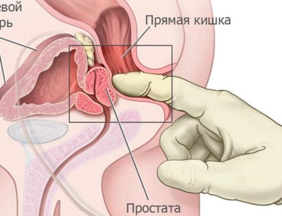 Mi a fibrózis a prosztatitisekkel Peptidek és prosztatitis